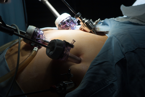 GL Surgical provides gastric bypass surgery in Singapore
