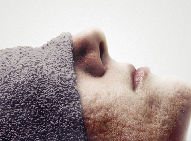 onlyaesthetics treatment for men