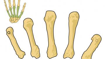 Osteoporosis Singapore